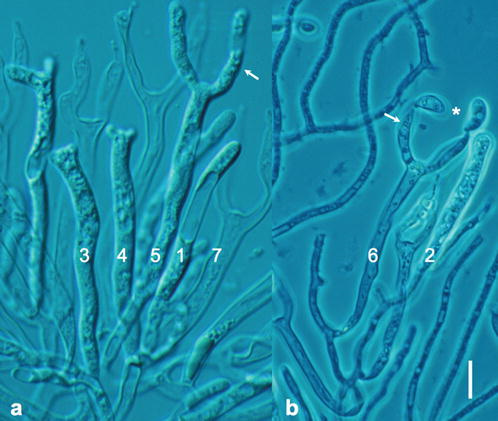 33-Light-microscopy-of-Dacrymyces-stillatus-showing-sequence-of-ontogenetic-steps-1-7.jpg